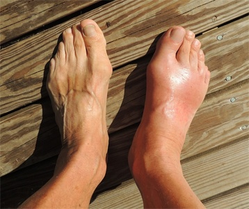 Gout relief?